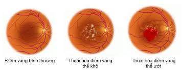 Cholesterol hình thành nên các tân mạch ở mắt gây thoái hóa điểm vàng